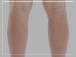 Elysium skin centre Laser treatment