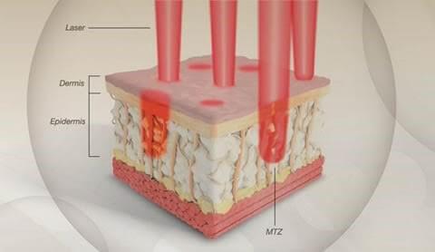 Elysium Skin Centre Fraxel Laser Diagram