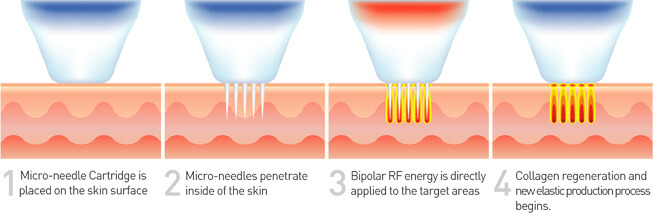 Elysium Skin Centre Radiofrequency Diagram