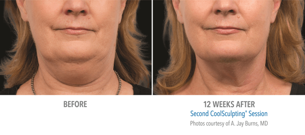 Elysium skin centre Before after