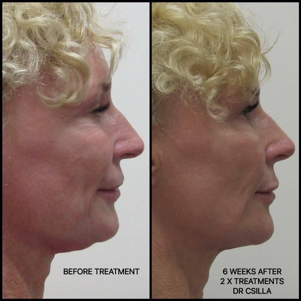 Elysium skin centre fat comparison