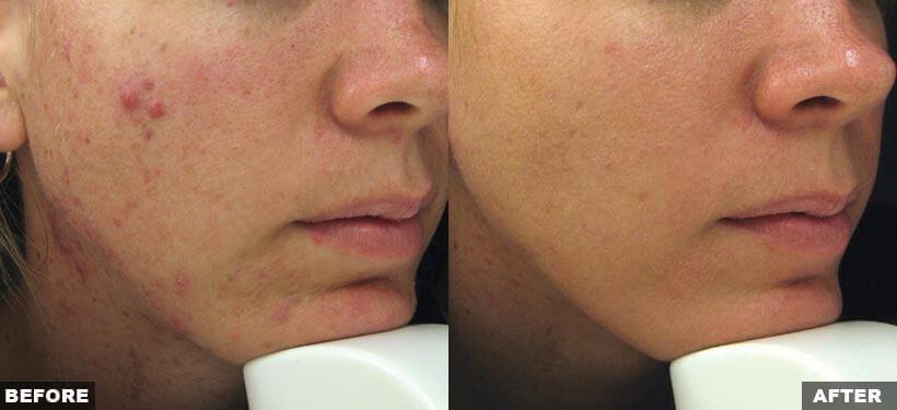 Are Acne Scars Treatable?