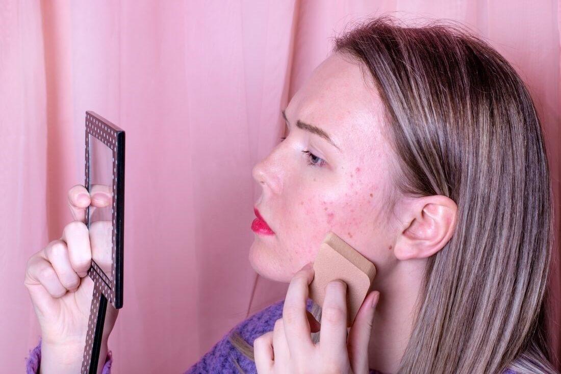 Improve Acne Scarring skin treatments